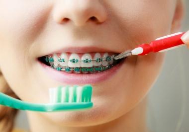Aparelhos para os dentes: qual, quando e como usar